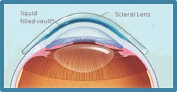 scleral image